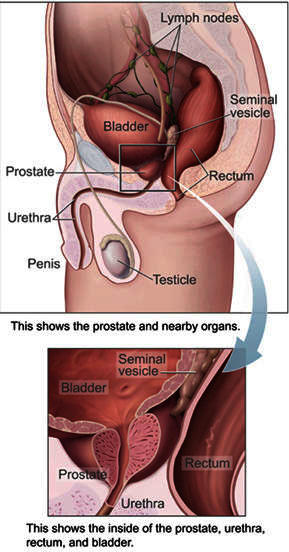 Is there medical help for erectile dysfunction after prostate removal?