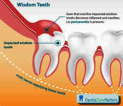 Can an infected tooth affect joints, etc?