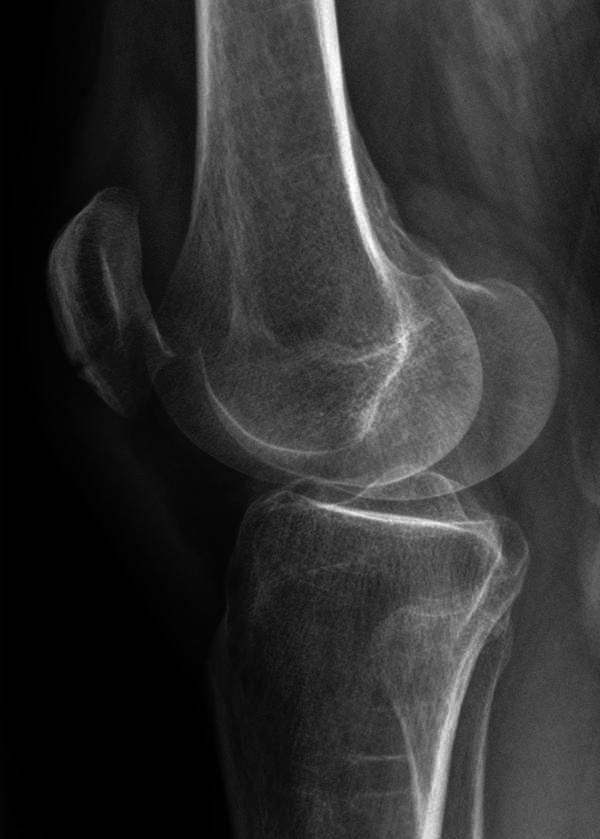 Which type of exercises can a total knee replacement patient do to firm lower body?