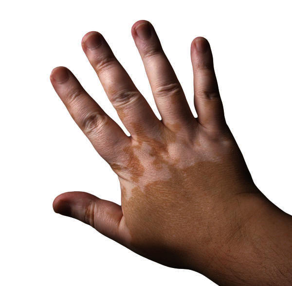 Will neutropenia lead to raynauds disease?