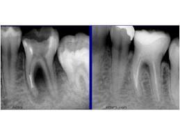 If root canal not fixing the problem, what are the alternatives?