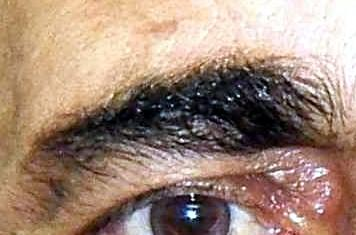 Why does eyebrow hair grow long and course?