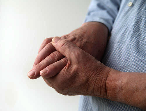 What makes some people have more viewable veins in hands than others?