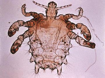 Do lots of people get pubic lice, or is it unusual?