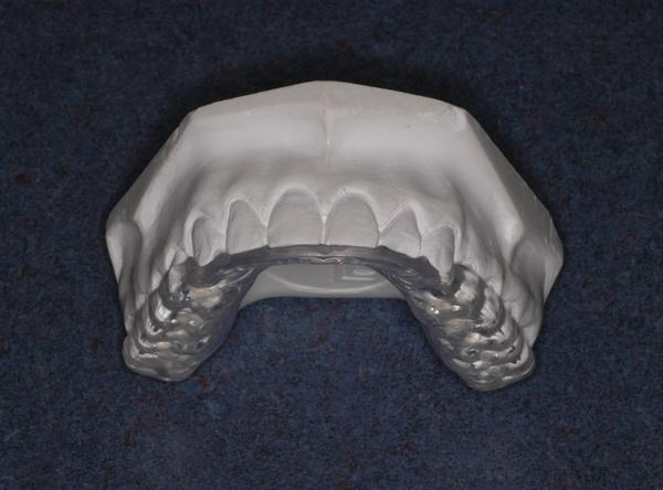 Is there a way to stop teeth grinding at night without a mouth guard?