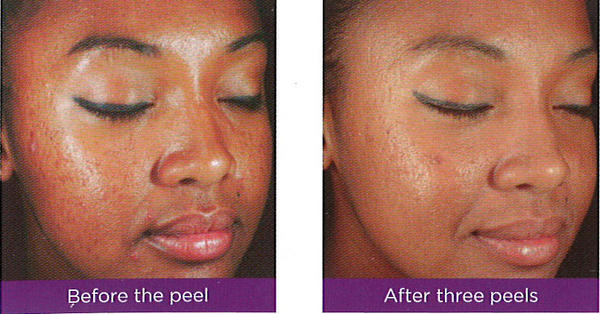 Home care ways to reduce and diminish acne scars?