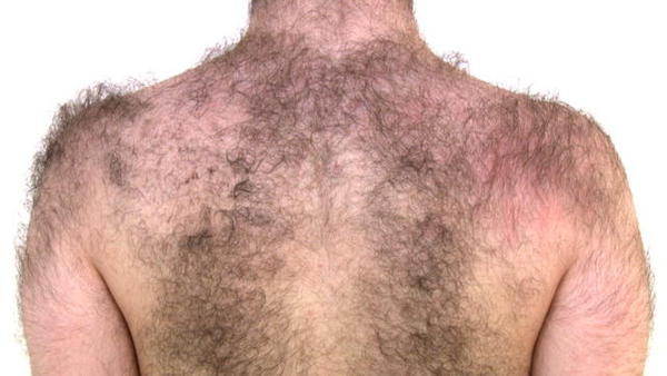 Does masturbation increase growth of hair in the body?
