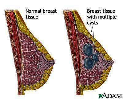 How far in advance can your breasts hurt before your period? My breasts have been hurting for two weeks now and I am expected to get my period today and even yesterday and i still have not gotten it. I am also under stress. But I am hoping I am not pregna