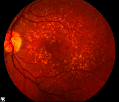 Can you compare and contrast the differences between glaucoma and macular degeneration?