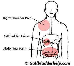 Symptoms of a bad gallbladder?