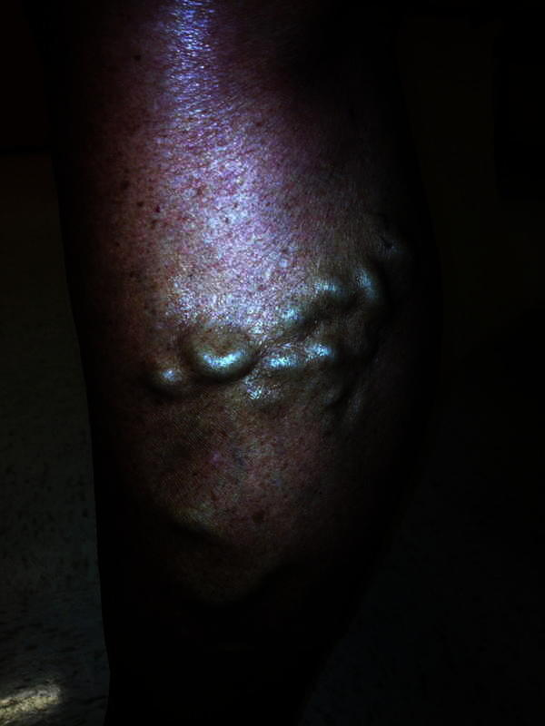 My father is is in his late 50s and isn't very healthy he has near his knee veins protruding out they look very swollen?