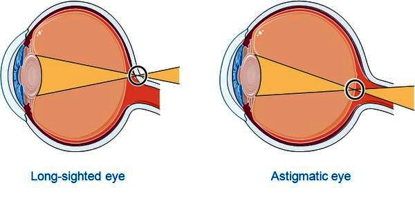 What is astigmatism? How can it comes to normal.
