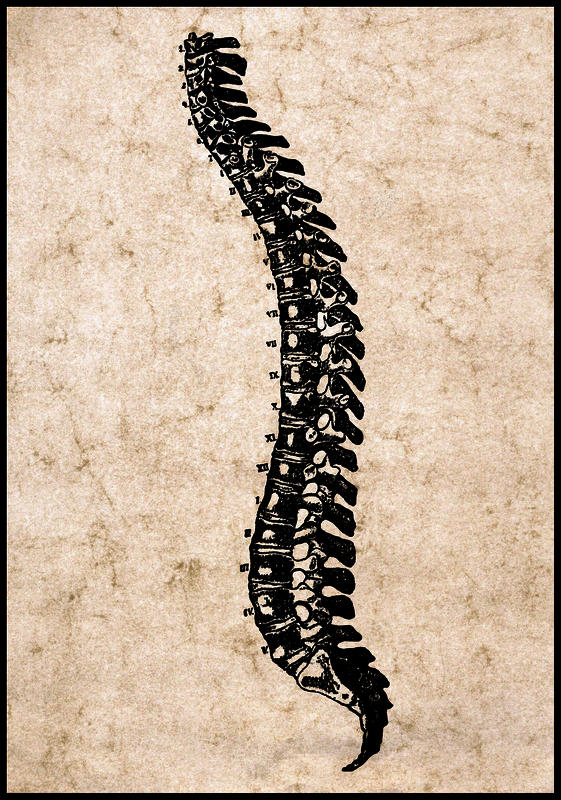 What is a spinal schwannoma?