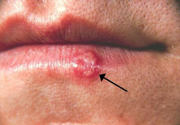 I have a sore inside my lip with a white head and a purplish color. The purple area has spread around the sore and onto my outer lip. What is it?