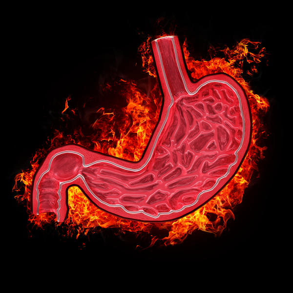 What are the best remedies for a stomach ulcer? And how long does it take for an ulcer to heal?