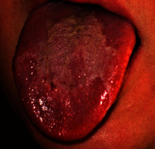 Does geographic tongue eventually clear up or does it never go away?