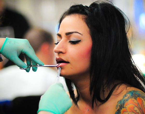How common is it for someone to need a lip augmentation?