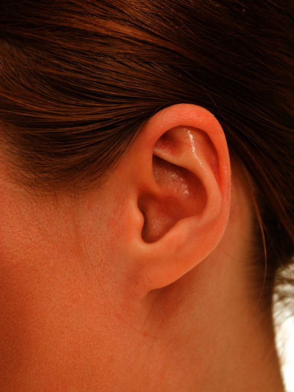 What is the likely hood that I have permanent tinnitus at age 16. It just occurred one day whilst watching t.V. I don' listen to loud music + no wax v?