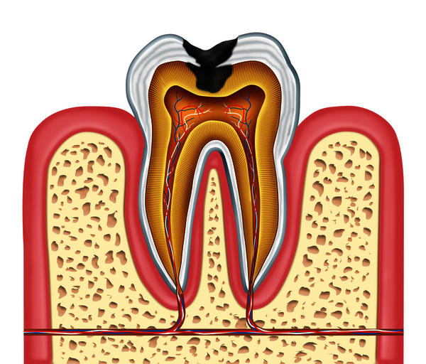 How many visits does it take for molar root canal? I visited the same dentist more than10 times and still the tooth is sore. I went to a different doctor to get it sealed but it is still painful. What should I do?