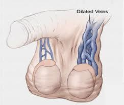 Swollen veins around the testicle (known as varicoceles) caused by over masturbating?