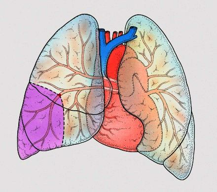 Can lung cysts start at the bottom of the lungs in lymphangioleiomyomatosis?