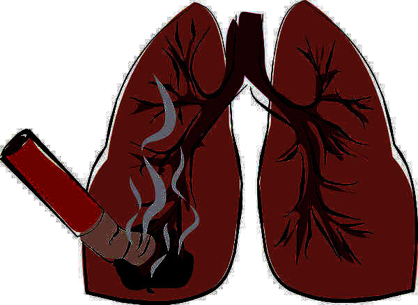 How accurate are chest xrays for finding lung cancer?