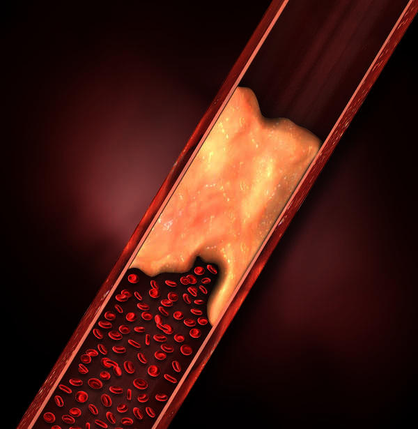 What are the causes of deep vein thrombosis?