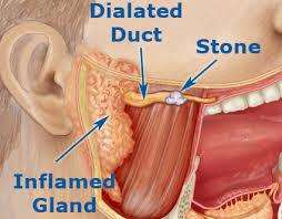 What causes a salivry glan to become blocked an how can this be cured?