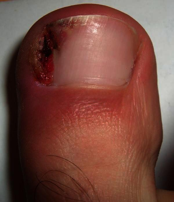 Woke up with swollen/inflamed big toe. Nail is very sensitive. No trauma, or injury. Seems infected. What could this be?