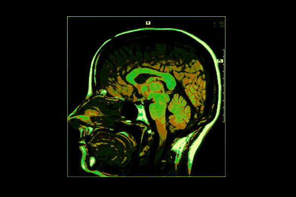 Brain pet scan no metabolic activity means no cancer of brain or no cancer anywhere in my body? Does this also mean no inflammation, hypometabolism?