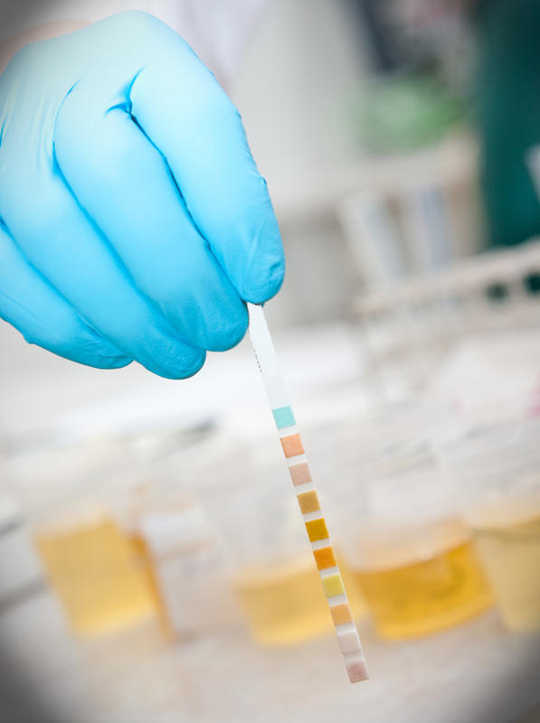 What may cause a trace of bacteria in urine?
