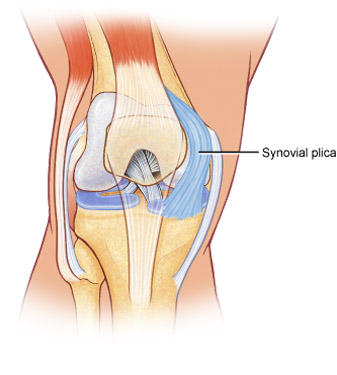My left knee keeps popping sometime there is pain and sometimes there is no pain. What should I do?