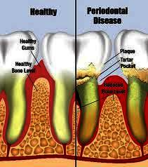 What is the relationship  of simvastatin   that dentists us it for the treatment of gum disease?!