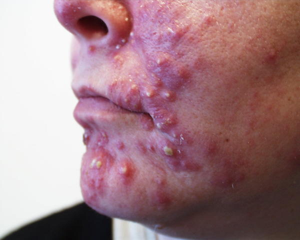 What is the best natural method for treating acne?