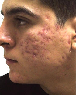 Uneven bumpy face due to acne?