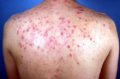 Can you use clotrimazole cream on your back for your acne?