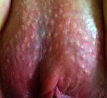 Spots on the vulva