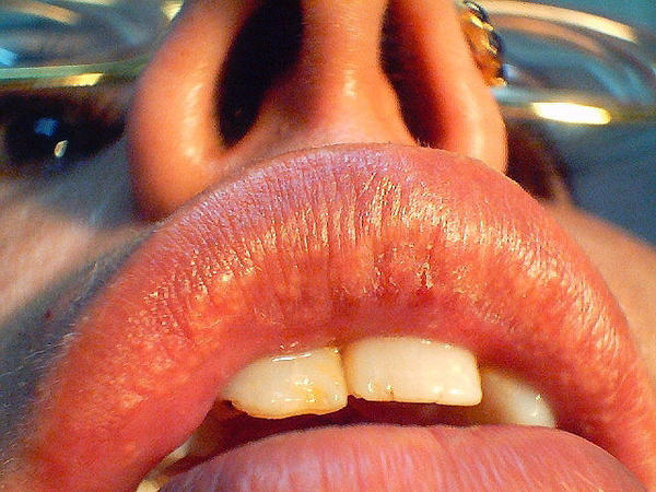 Can others see Fordyce spots on lips?