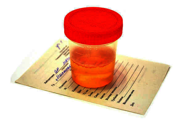 What does a trace of leukocytes in urine mean?