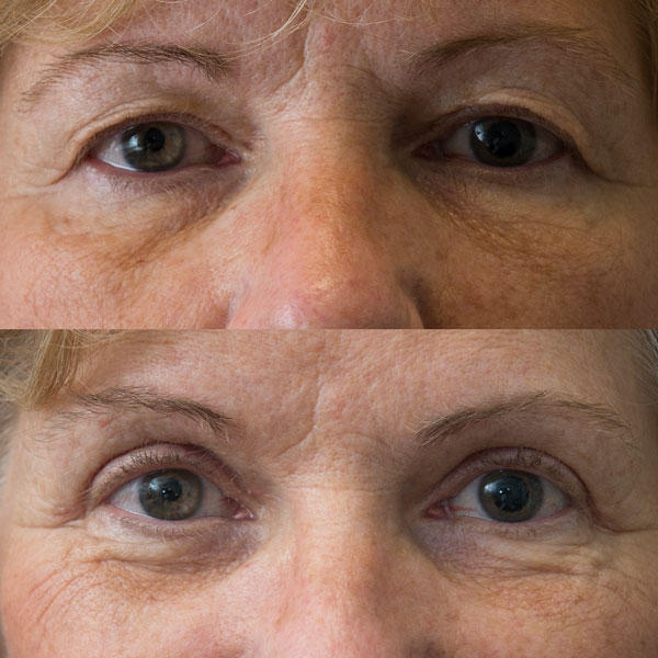 What preparations should a patient make before eyelid surgery? I am getting eyelid surgery done in a few weeks to correct saggy upper eyelid skin that impedes my vision. What specific things should I do to prepare for it now, and what supplies should I ha