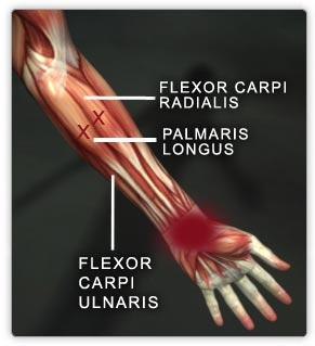 What injuries can occur to flexor carpi radialis tendon and what are the symptoms and treatment for them?