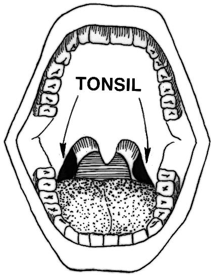 Should i worry if i was getting a tonsil stone out my tonsil and it started bleeding?