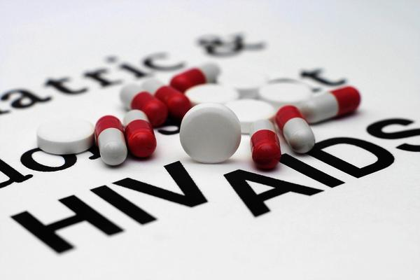 Does HIV progress faster if some one is already ill with an auto immune disease such as lupus and rheumatoid arthritis?