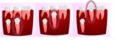 How can you tell the difference between your baby molars and adult teeth?