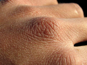 What is the most recommended over-the-counter treatment for dry skin?