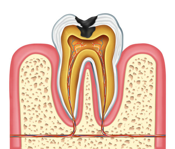 The tooth's nerve root should be dead after my root canal 6 months ago. So, how did I get a dental abcess if all the canals were perfectly done?