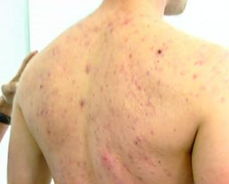 Help for acne scarring on arms?