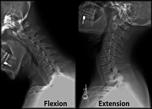 What is intervertebral disc disorder with myelopathy cervical region?