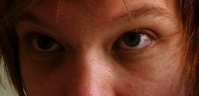 I was born with dark circles under my eyes i'm wondering if this is a medical problem and if there is any medication that will reduce the color.
