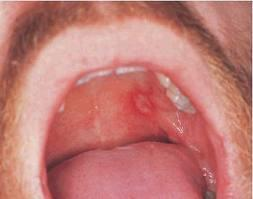 Will a doctor prescribe pain meds for canker sore on uvula?